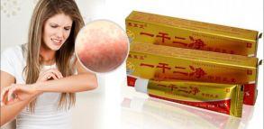 YIGANERJING (ИГАНЕРЖИНГ) негормональный крем от псориаза, экземы и дерматита